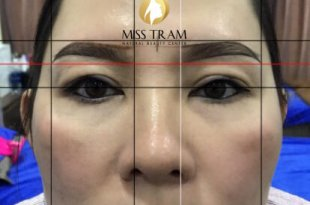Before and After Results of Processing Old Eyebrows, Scraping Scraping Thread 9D 15