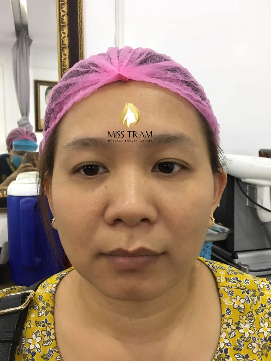 Before and After Using Sculpted Eyebrow Sculpting Technology 9D 3