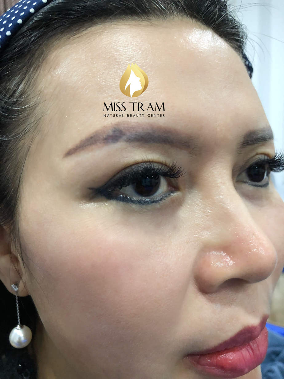 Before And After Scar Treatment - You Discolored Using Powder Spray Method 2