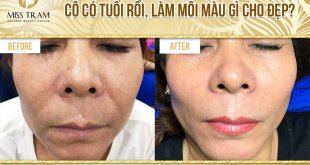 Before and After Spraying Lip Tattoo For Older Women Beautiful Bao 11