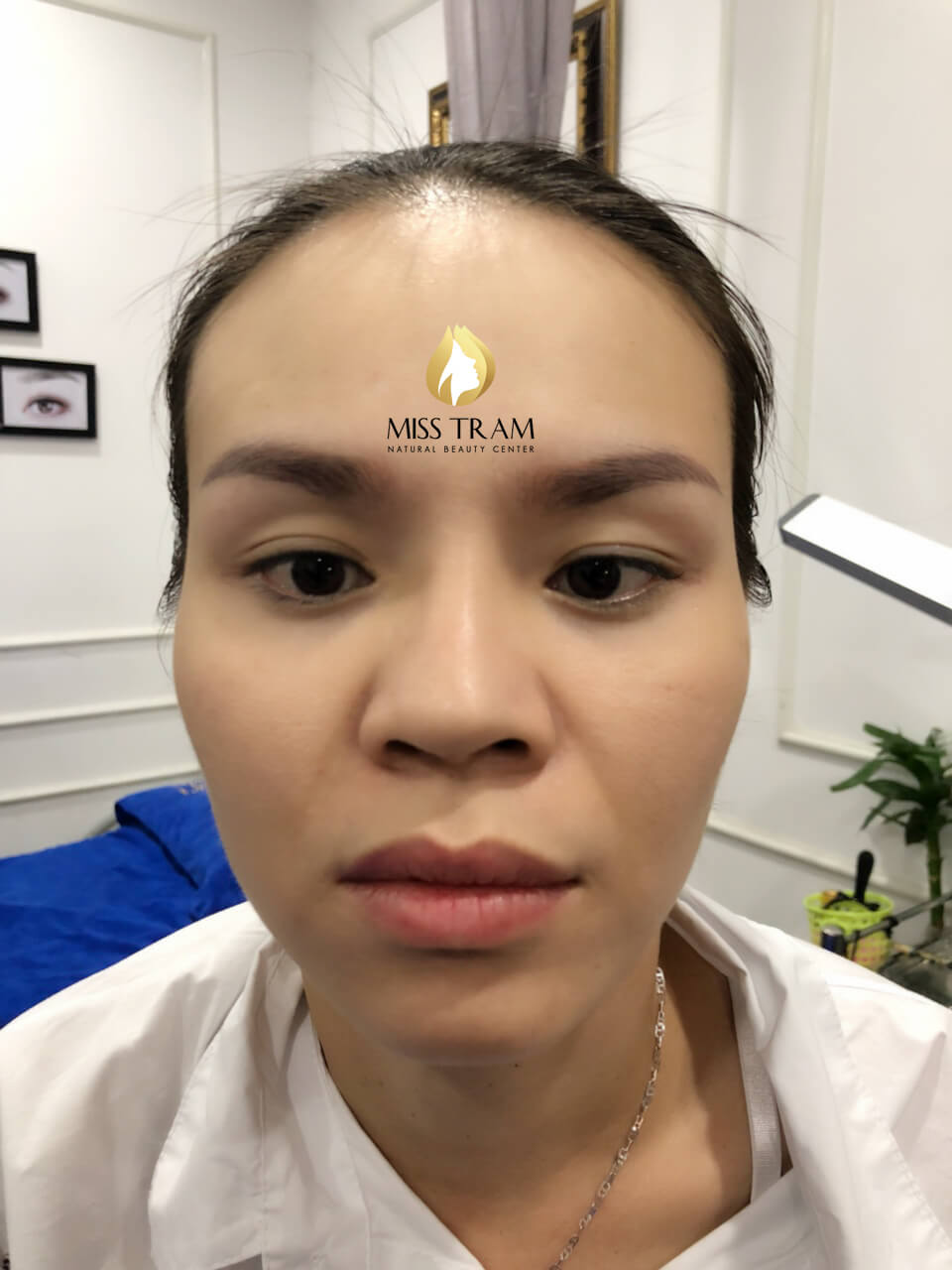 Before and After Results of Old Eyebrow Treatment, Superfine Powder Spraying 2