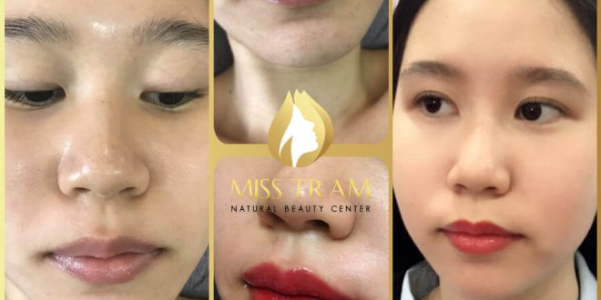 Before And After Spraying Queen Lips For Young Female Guests 1