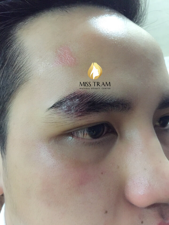 Before And After Sculpting Eyebrows With Scar Fiber For Men 4