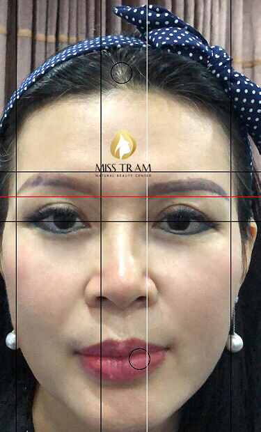 Before And After Scar Treatment - You Discolored By Powder Eyebrow Spraying Method 3