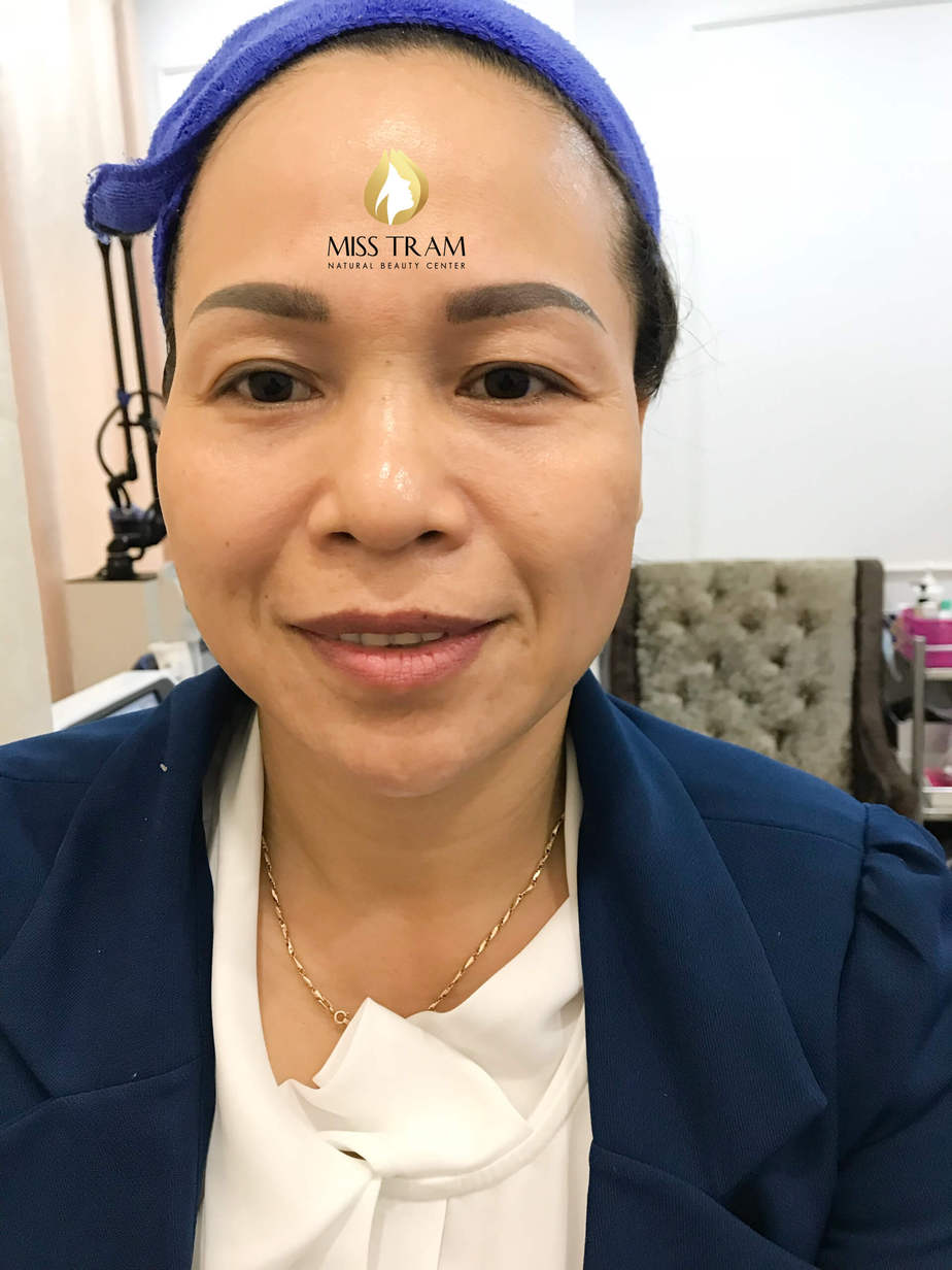Before and After Results of Skin Rejuvenation by Hifu Technology 3