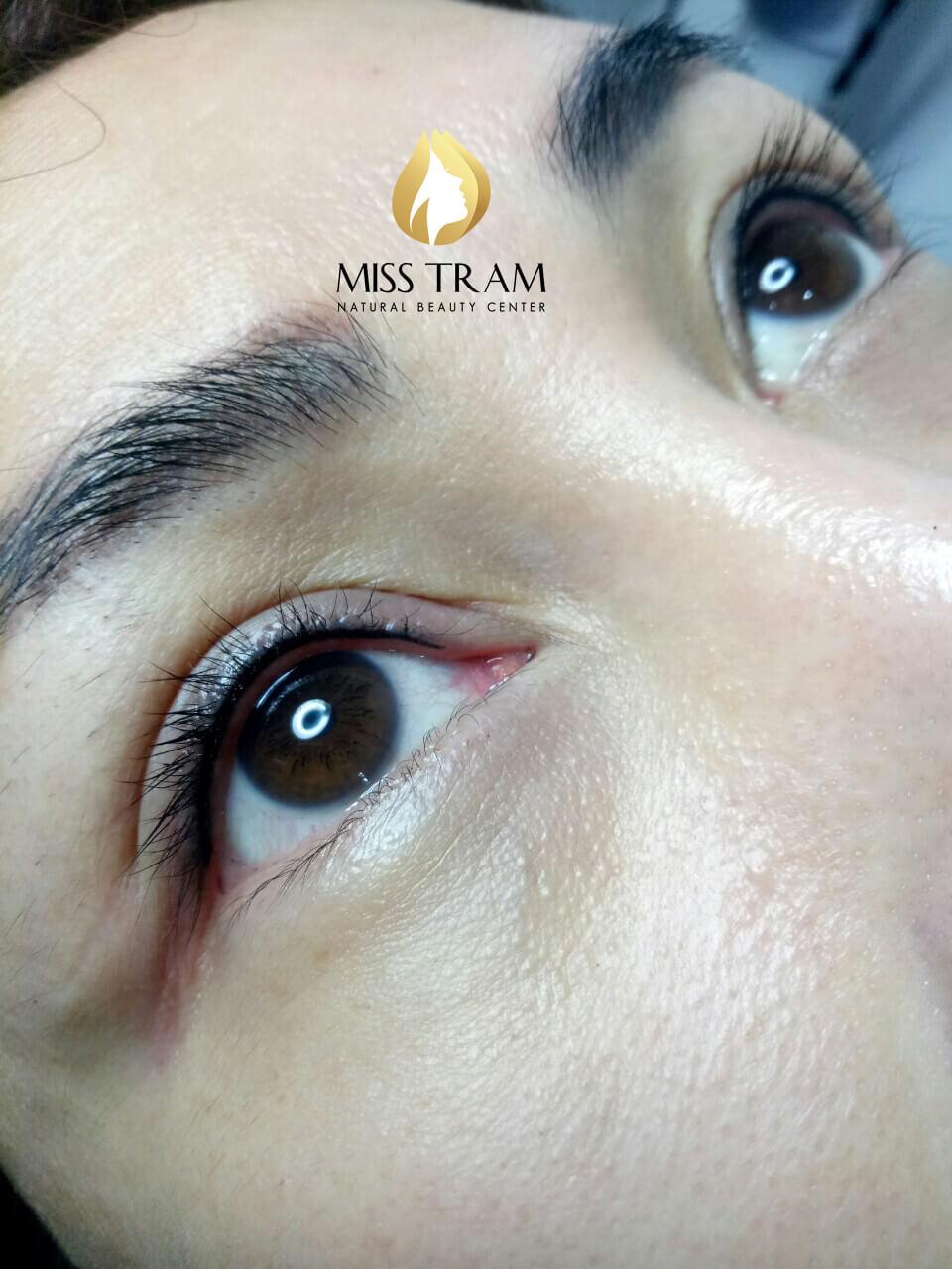 phun mí mắt mở tròng là giải pháp an toàn, đem lại hiệu quả nhanh chóng