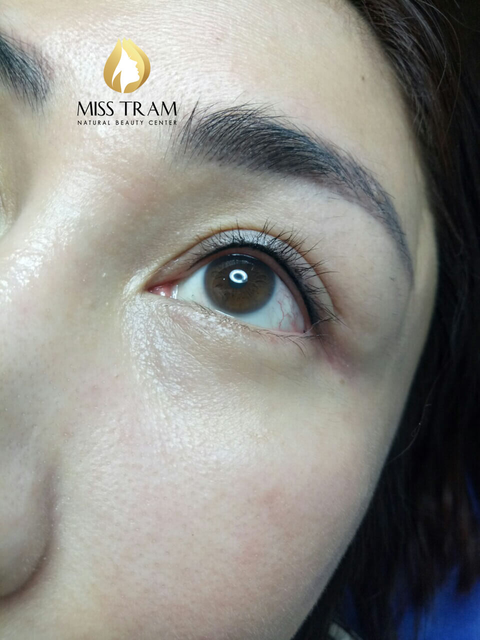 Open eyelid surgery is the enhancement of traditional eyelid tattoo spray technology, giving you a great choice for beauty.