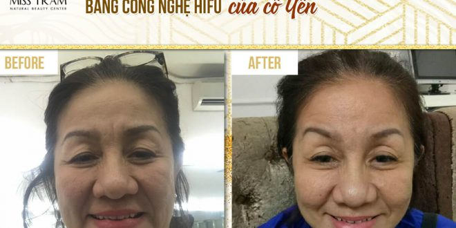 Before And After Wrinkle Removal With Hifu Technology For Guests 1
