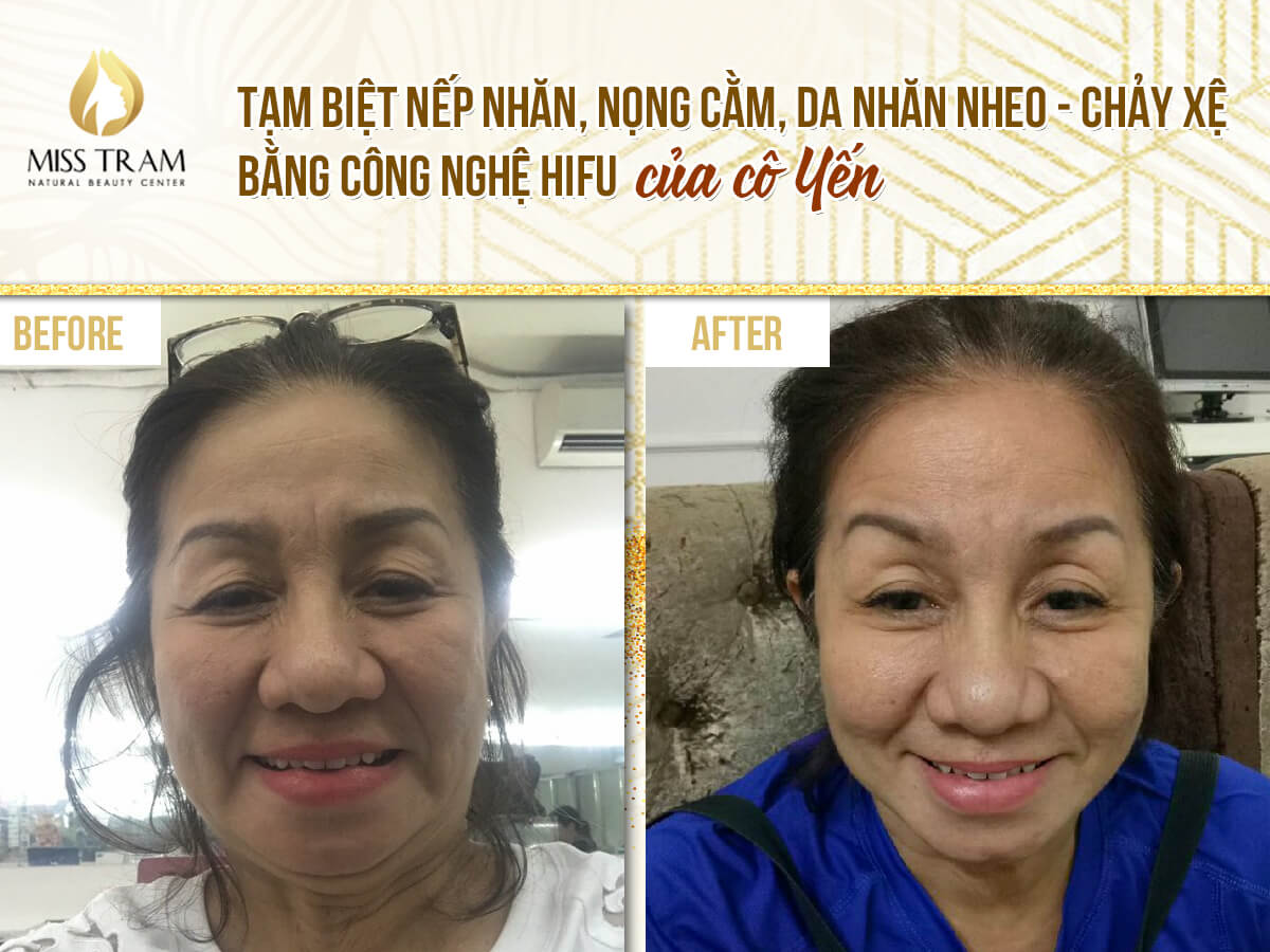 Before And After Wrinkle Removal With Hifu Technology For Guests 2