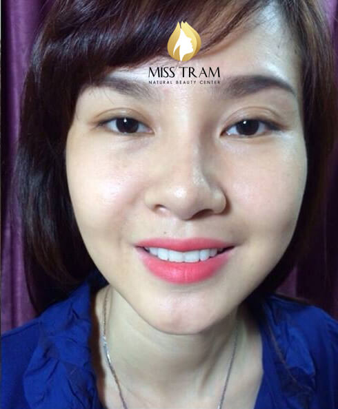 Before & After Lifting Results - Facial Skin Rejuvenation With Hifu Technology 3
