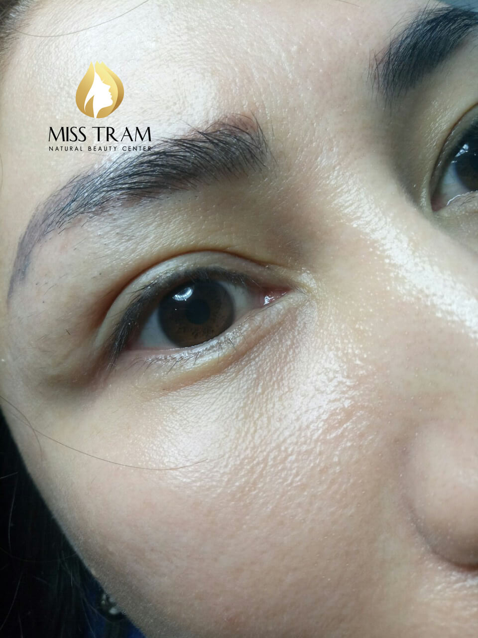 Should spray open eyelids at Miss Tram and spray open eyelids at miss tram cost much