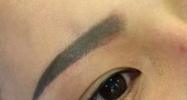 Treatment of Blue, Red, and New Eyebrows With European Standard 1
