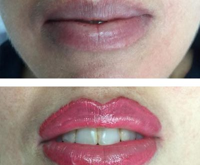 Treatment of Lip Color Too Deep - Uneven - Lemed - Bruised 1