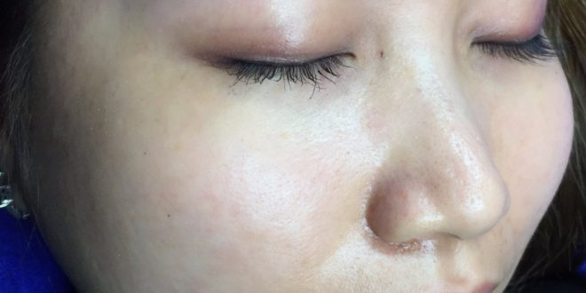 Treatment of Red-Eyed Eyebrow Skin after Tattooing 1