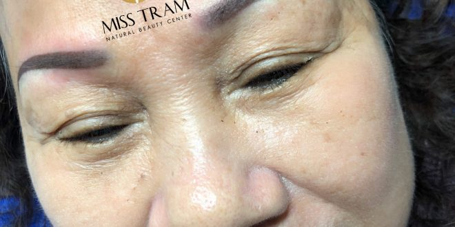 Before and After Results of Old Eyebrow Treatment - Natural Brown Eyebrow Spray 1
