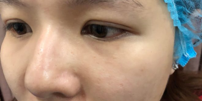 Before And After Shaping Your Eyebrows - Sculpting You Get Thread 9D 1