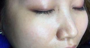 Eyebrow Correction - Brow Red - Brow Red