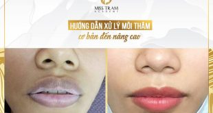 Discussion: Basic Advice for Advanced Lip Treatment 18