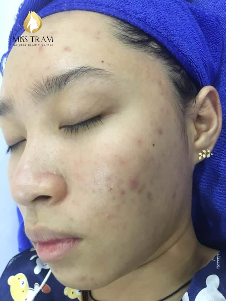Before And After Acne Treatment Laser CO2 Technology Fractional 3