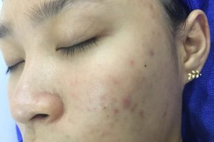 Before And After Acne Treatments With CO2 Laser Fractional 12
