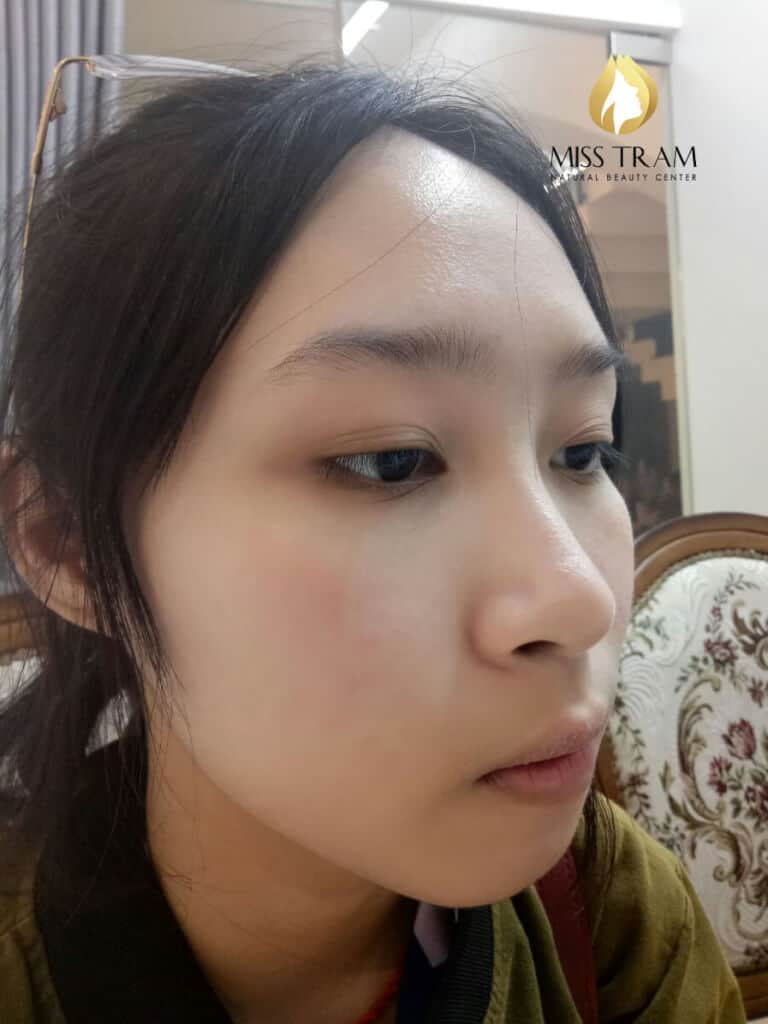 Before And After Acne Treatments With CO2 Laser Fractional 4