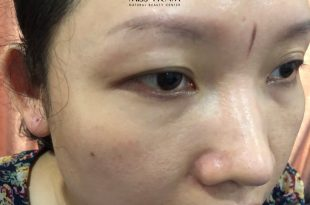 Before And After Handling Old Eyebrows, Making New Shapes With Sculpture Technology 10