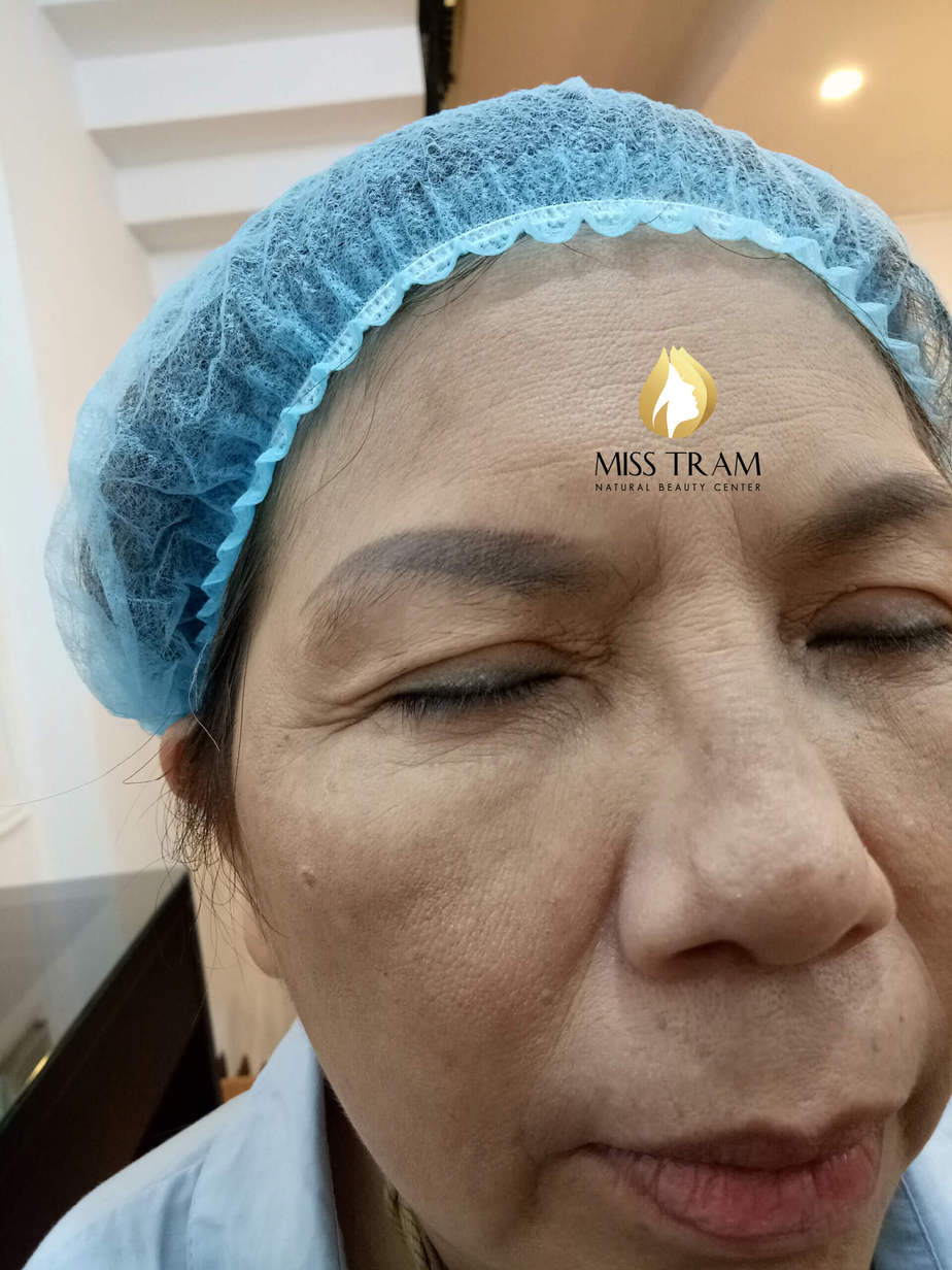 Before And After Handling Old Eyebrow, Sculpting You Combined With Natural Powder Spraying 2