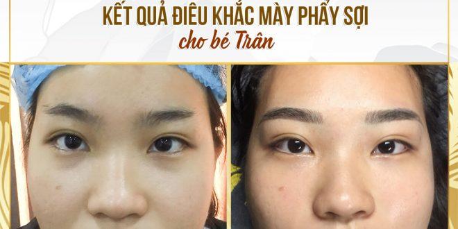 Trước và Sau Khi Sử Dụng Phương Pháp Điêu Khắc Mày Làm Đẹp 1