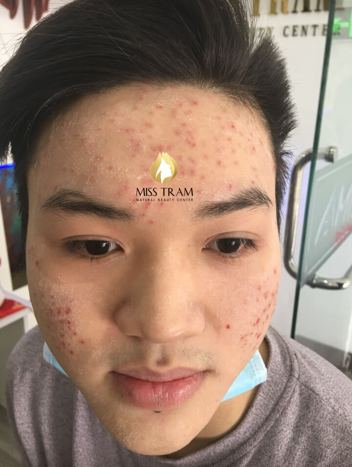 Before and After Acne Laser Treatment with Fractional CO2 Technology for Men 2