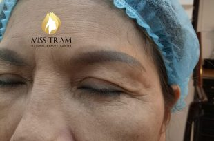 Before And After Handling Old Eyebrow, Sculpting You Combined With Natural Powder Spraying 7