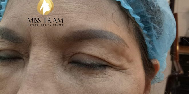 Before And After Treating Old Eyebrow, Sculpting You Combined With Natural Powder Spraying 1