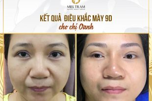 Before and After Results of Shaping You, Sculpting You 9D Beautiful, Standard 31