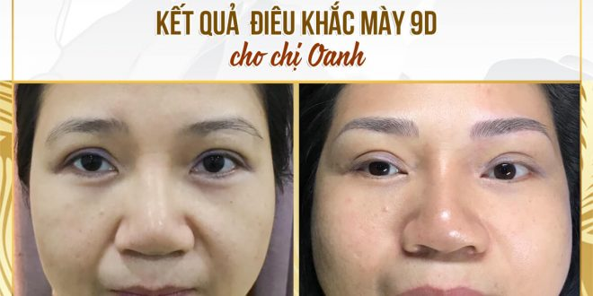 Before and After Results of Shaping You, Sculpting You 9D Beautiful, Standard 1