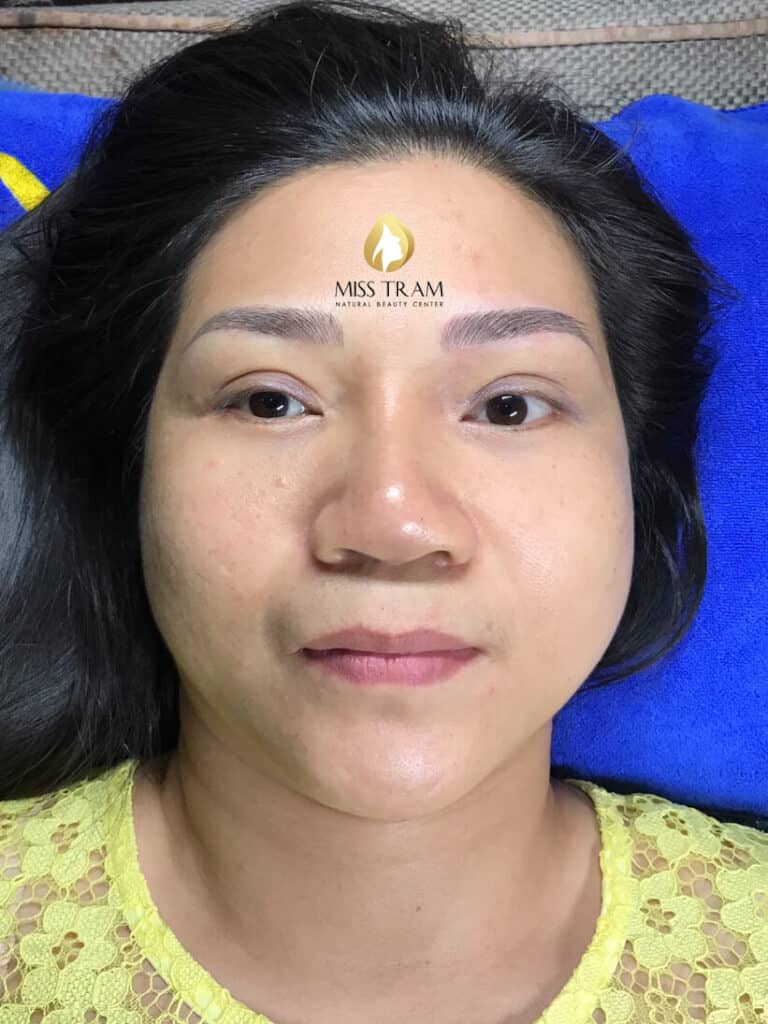Before and After Results of Shaping You, Sculpting You 9D Beautiful, Standard 3
