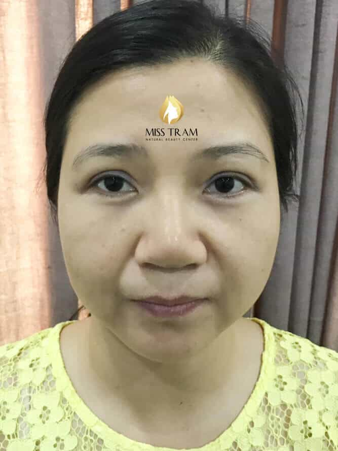 Before and After Results of Shaping You, Sculpting You 9D Beautiful, Standard 2