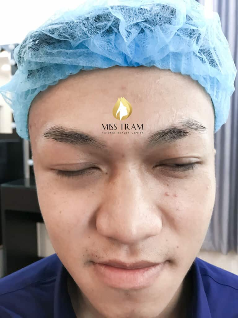 Before and After Using Sculptor Mask For Men 2