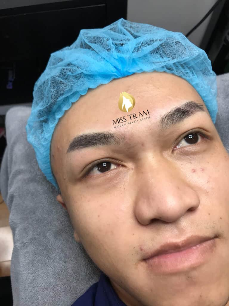 Before and After Using Sculpting Masks For Men 5