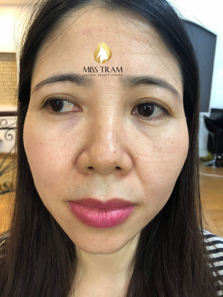 Before and After Beauty Image With Natural Eyebrow Sculpture Technology 2