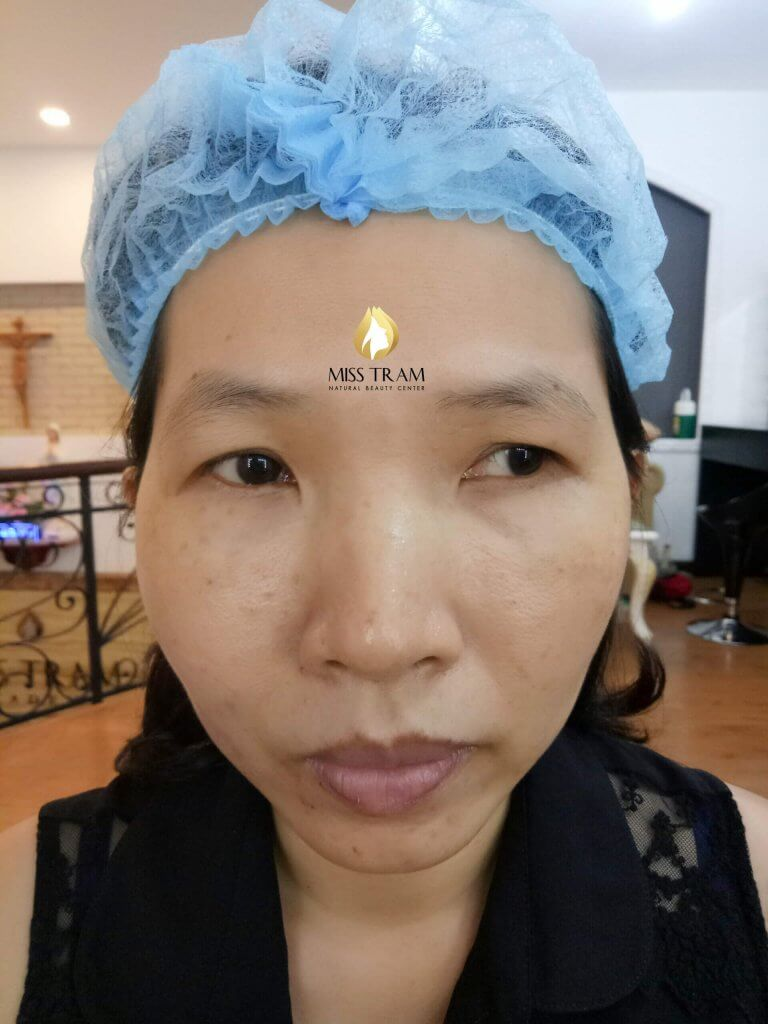 Before And After Results Of Sculpting Eyebrow Sculpting For Women 2