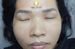 Before And After Results Of Sculpting Eyebrows For Women 46