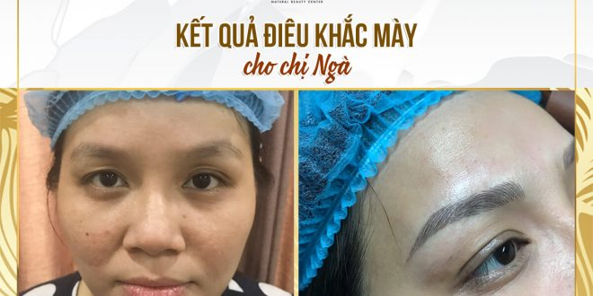 Before and After Performance Results Sculpting Natural Brown Thread 1