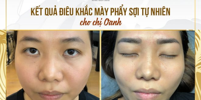 Before and After Natural Sculpting Technology 1