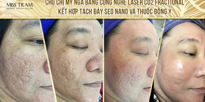 Before and After Acne Treatment - Deep - Concave Scars - Skin Rejuvenation by Fractional CO2 Laser Technology Combined with Traditional Medicine 1