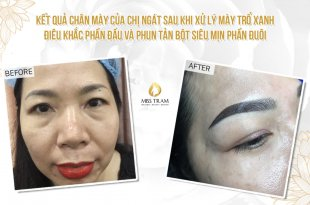 Before And After Treatment Of Blue Eyebrow Sculpting, Head Sculpting And Eyebrow Spraying 5