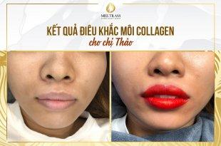 Trước Và Sau Xử Lý Thâm Và Điêu Khắc Môi Collagen 13