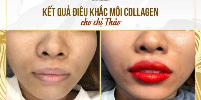 Before And After Deep Treatment And Lip Sculpture Collagen 1