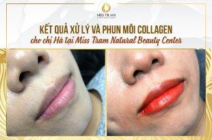 Trước Và Sau Quá Trình Xử Lý Và Làm Đẹp Bằng Phương Pháp Phun Môi Collagen 10