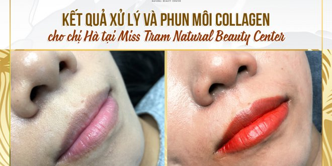 Before And After Treatment And Beauty With Collagen Lip Spray Method 1