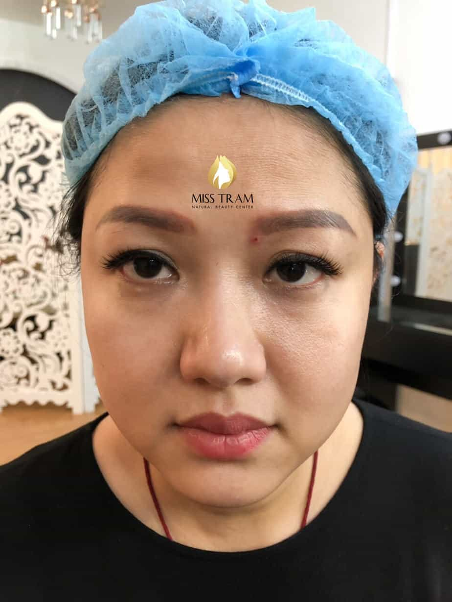 Before And After Treatment Of Red Eyebrow Powder - Super Fine Powder Spray 2