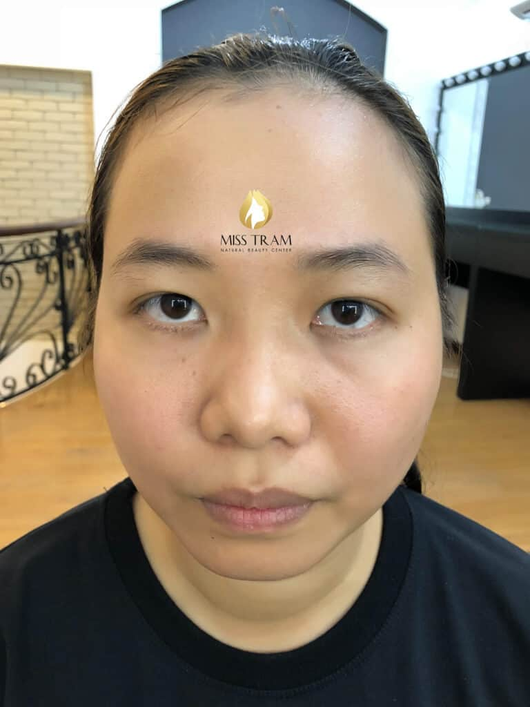 Before and After Natural Sculpting Technology 2